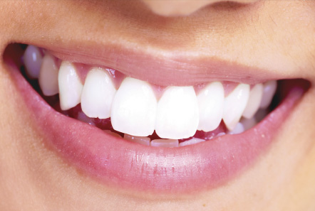 cost of dental implants in Baton Rouge